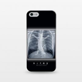 iPhone 5/5E/5s  X-Ray by Tummeow ()